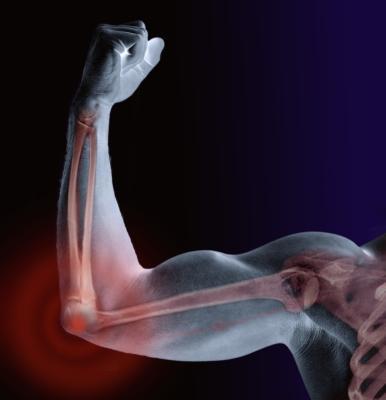 stronger-bones