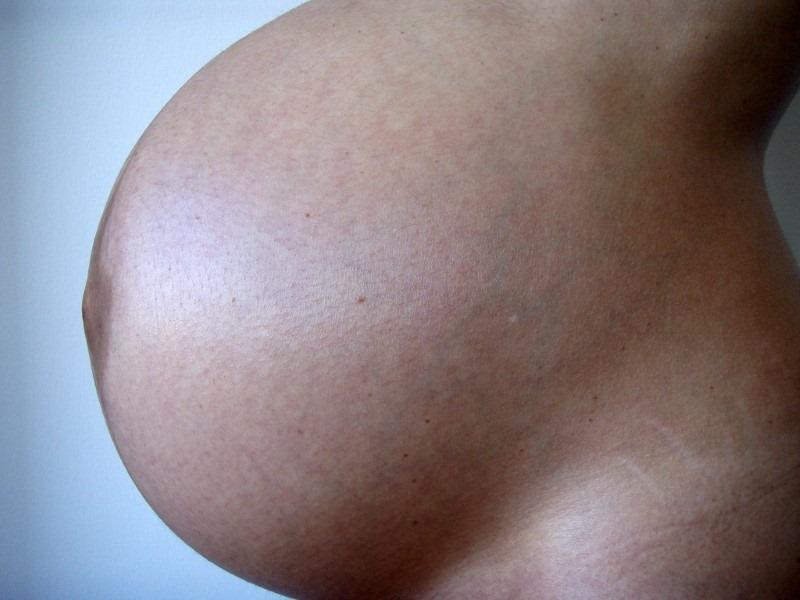 swollen-abdomen